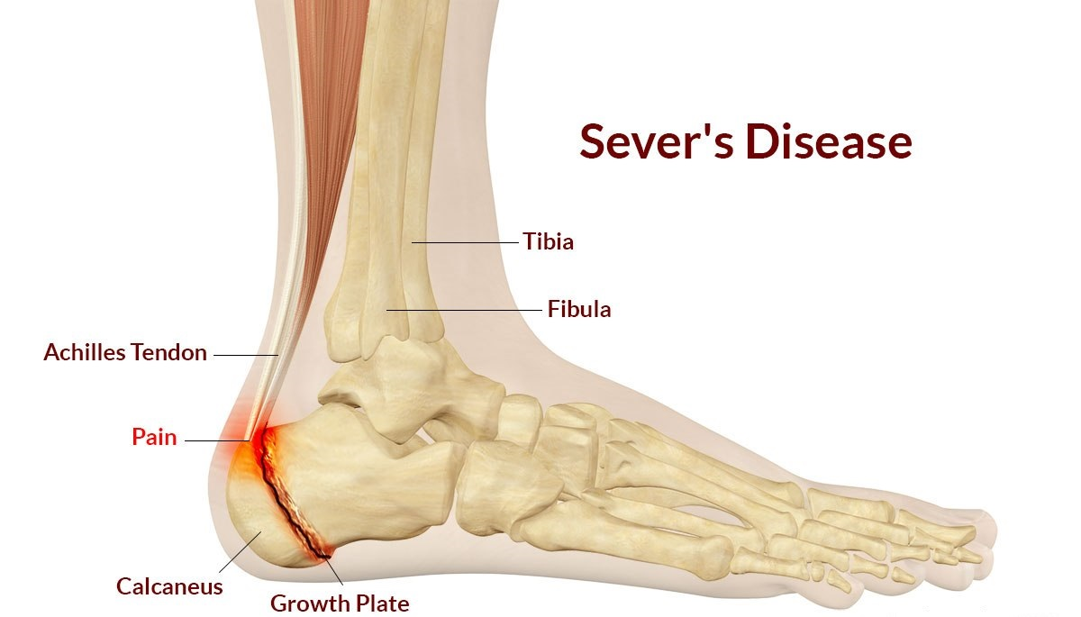 severs-disease3